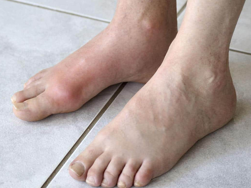 GOUT & YOUR FEET